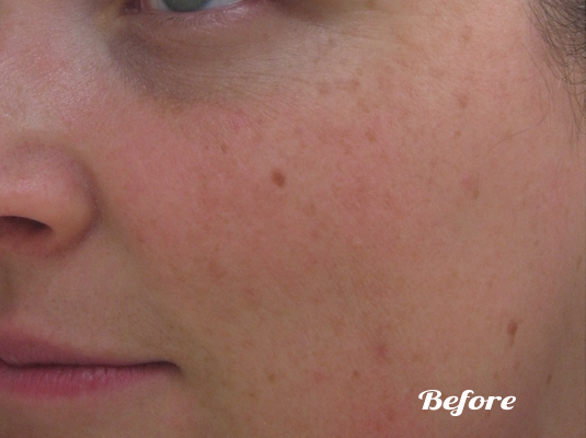 The IPL Photofacial for Awesome Skin