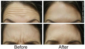 Before and after Botox for wrinkles