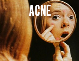 self diagnosis acne